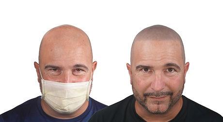 SMP Buzz Cut Bald Man New Hair.jpg