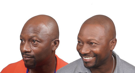 Tyrone Before&After Left no logo.jpg