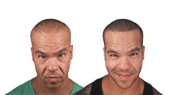 The Scalp Shop Hair Restoration New York