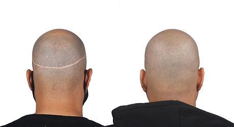 Edward Before&After back scar no logo.jp