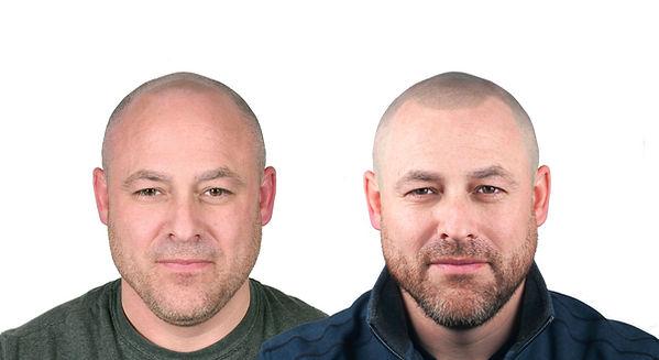 Byran Hatfield Before&After Front no log