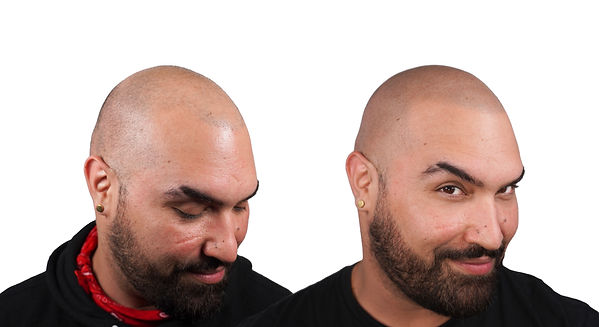 Joaquin SMP Before After Scalp Micropigm