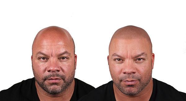 Bodybuilder transformation bald.jpg