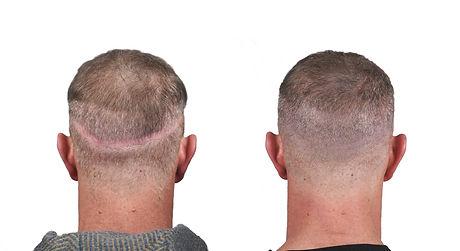 Johnny O Before&After back scar no logo.