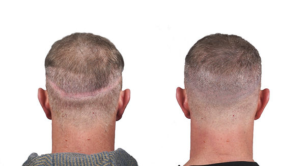 Johnny O Before&After back scar no logo.