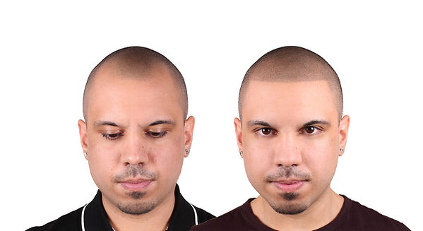 Josh Before&After front no logo.jpg