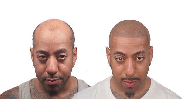 Ricco The Scalp Shop Transformation Hair