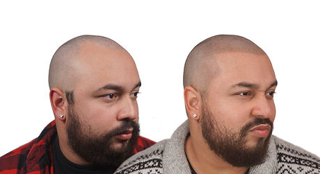 Nadin The Scalp Shop Before and After Sc
