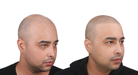 The Scalp Shop Edward Before and After S
