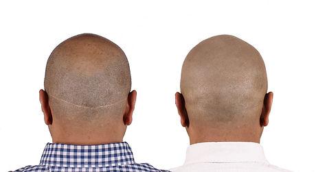 hair transplant scar camouflage smp.jpg
