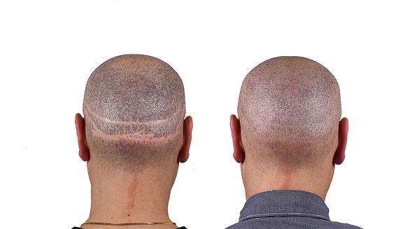 Lenny SMP Hair Transplant Scar Camouflag