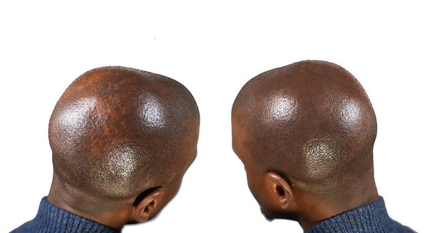 Scalp Micro Pigmentation Bald Spot Treat