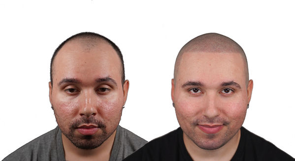 Scalp Micro Pigmentation Results SMP New