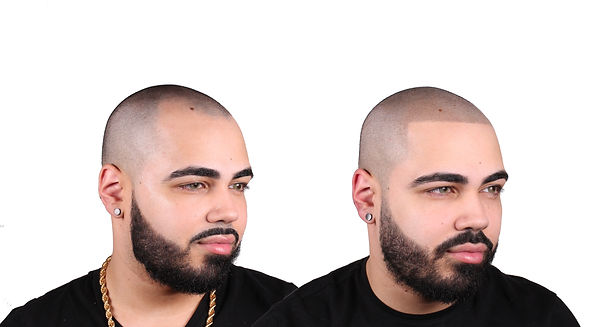 THE SCALP SHOP HAIR TATTOO RECEDED HAIRL