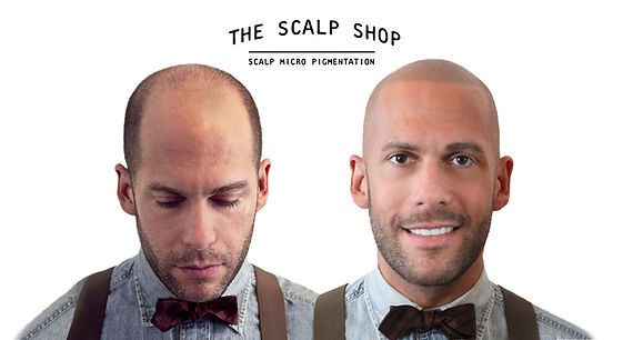 The Scalp Shop | Scalp Micro Pigmentation Before and After Treatment