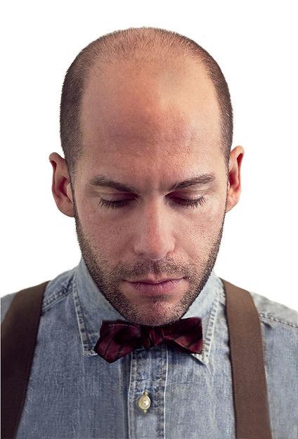 Bald Hair Loss Treatment Scalp Micro Pigmentation New York