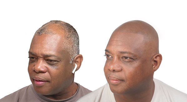 The Scalp Shop Scalp Micro Pigmentation Ernest Before After.jpg