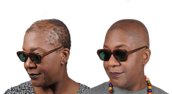 THE SCALP SHOP WOMENS HAIR LOSS CURE ALO