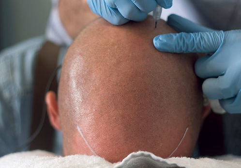 The Scalp Shop | Hair Tattoo - The #1 Baldness, Alopecia, Thinning Hair & Scarring Solution