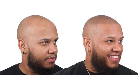 Kel Before&After Right giobrite no logo.