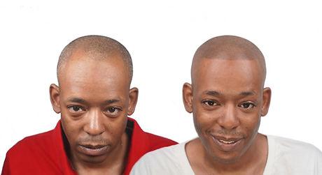 hair loss transformation smp new york.jp