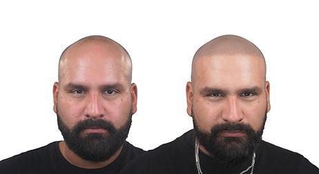 Fonz Before&After hair loss transformati