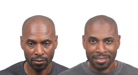David front Before and After gio no logo