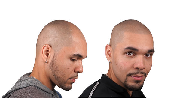 THE SCALP SHOP BEFORE AND AFTER HAIR TAT