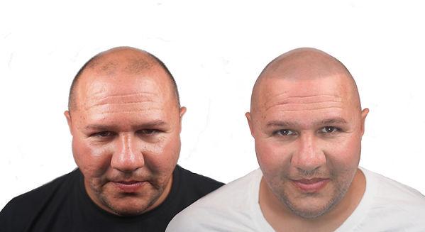 David Before&After Front k 2021 no logo.