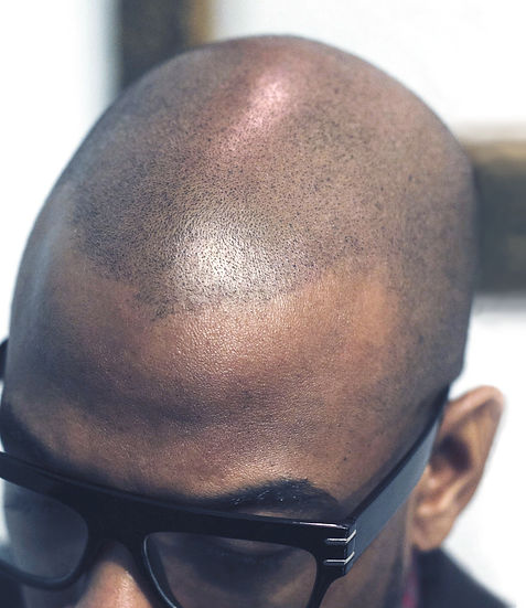 The Scalp Shop Scalp Micro Pigmentation New York Bald Alopecia Hair Loss T