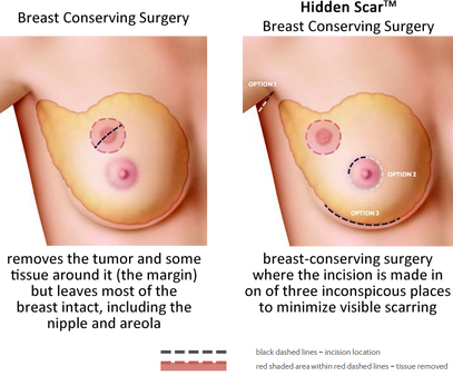 Lumpectomy for Breast Cancer