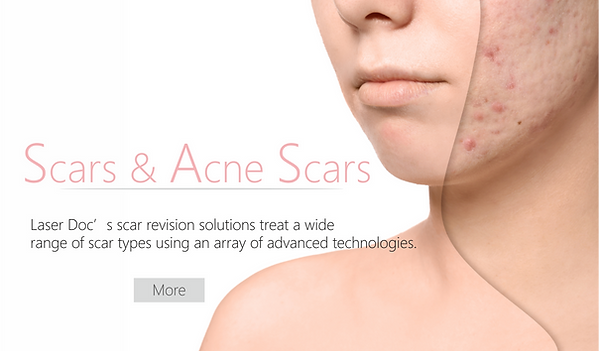Scars and Acne Scars