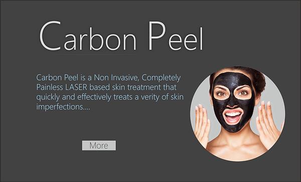 Carbon Peel
