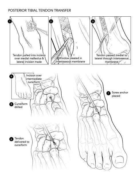 Posterior Tibial Tendon Transfer