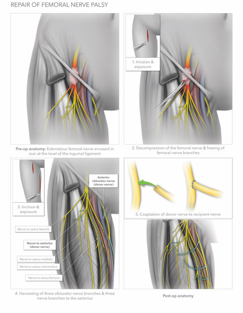 Repair of Femoral Nerve Palsy