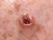 Ulcerated nodular basal cell carcinoma o
