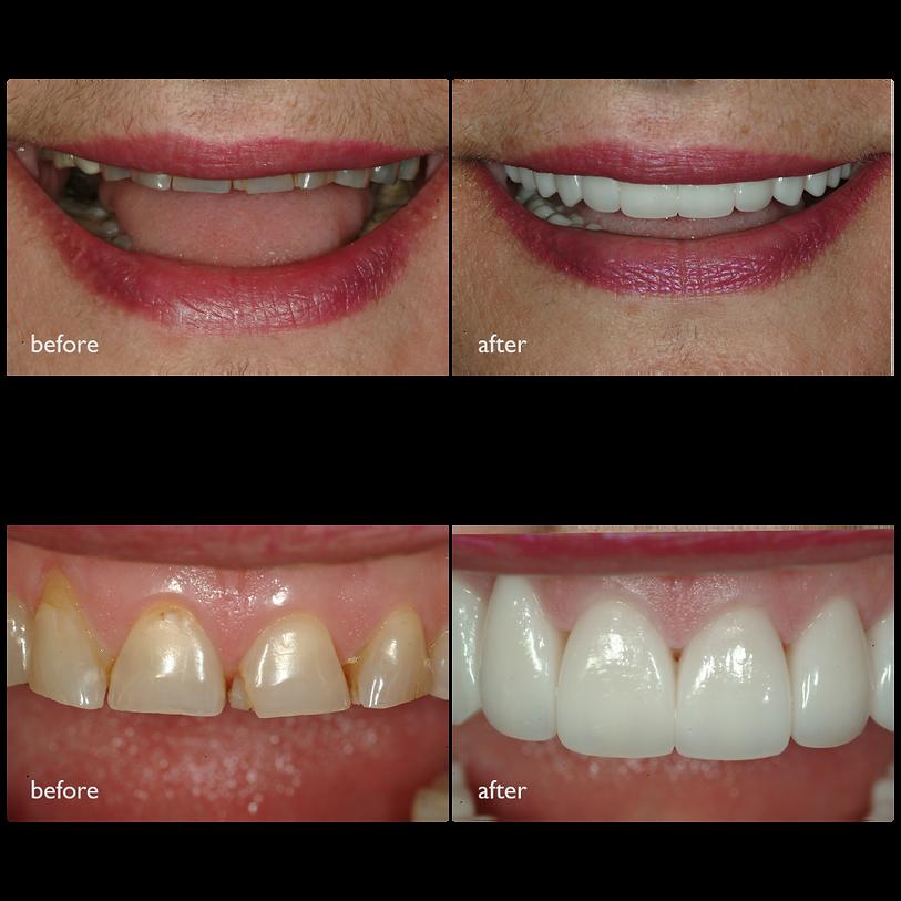 Worn Teeth Neo Dental