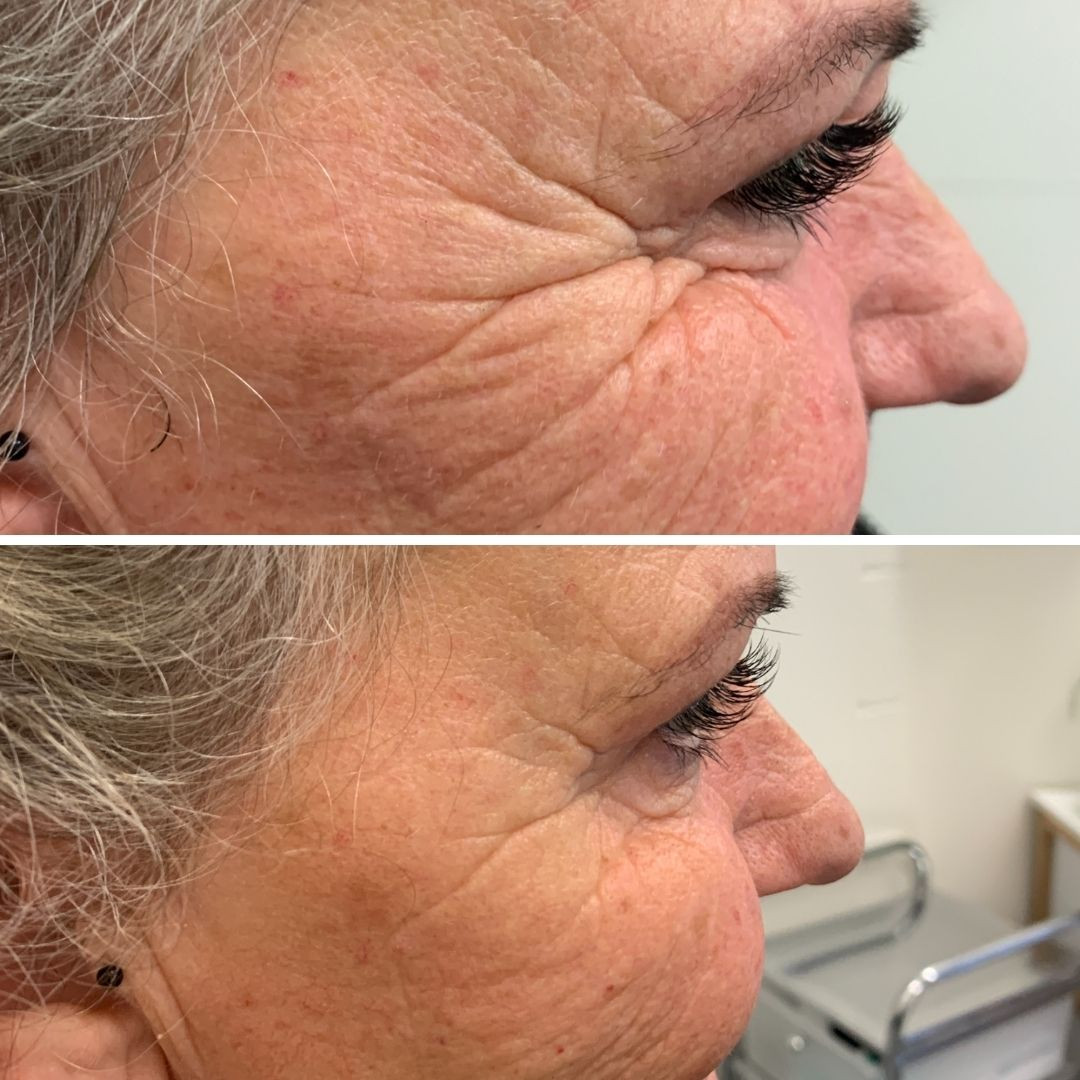 Anti-wrinkle injection before & after at