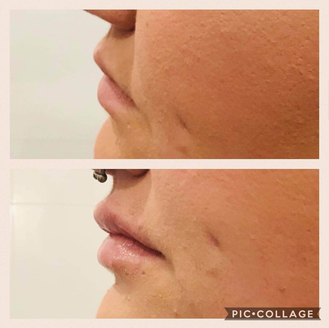 Dermal Filler Before & After at Quay Aes