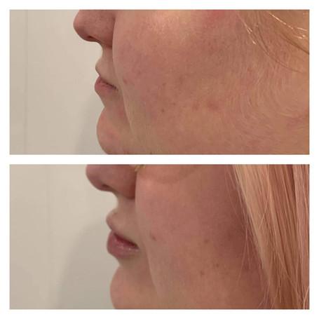 Dermal Filler Before & After at Quay Aes