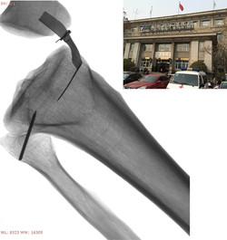 Forearm phantom (Beijing Jishuitan Hospital)