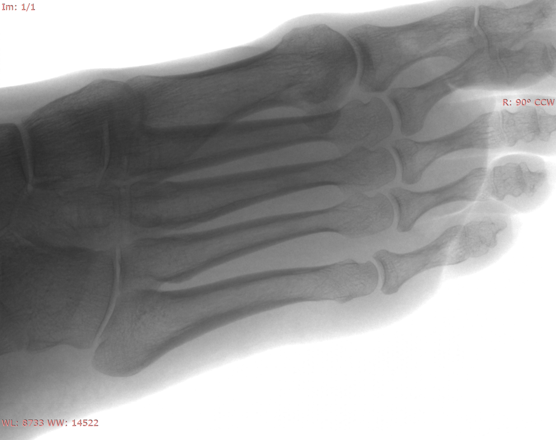 Female Foot