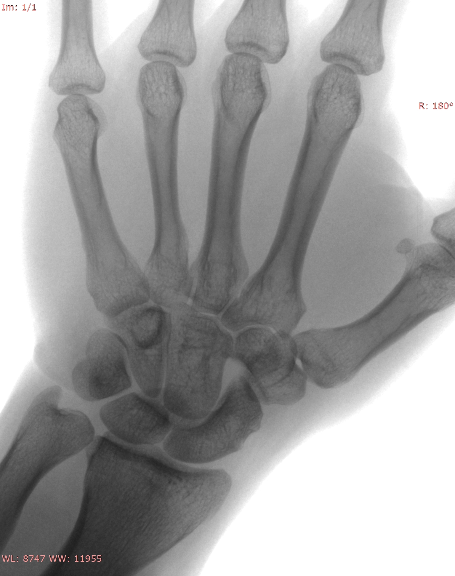 Adult Male Hand