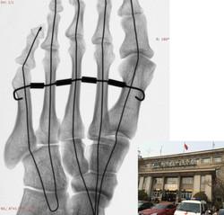 Foot phantom (Beijing Shuitan Hospital)