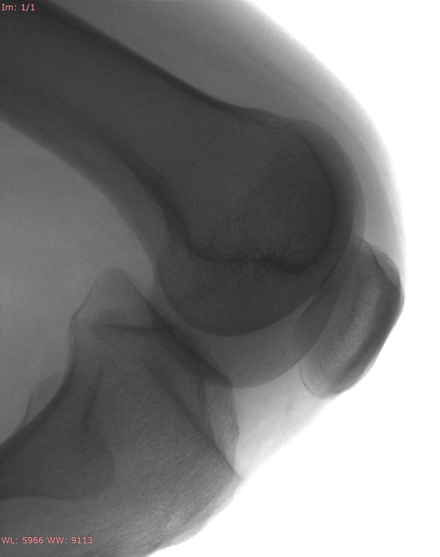 Adult Knee