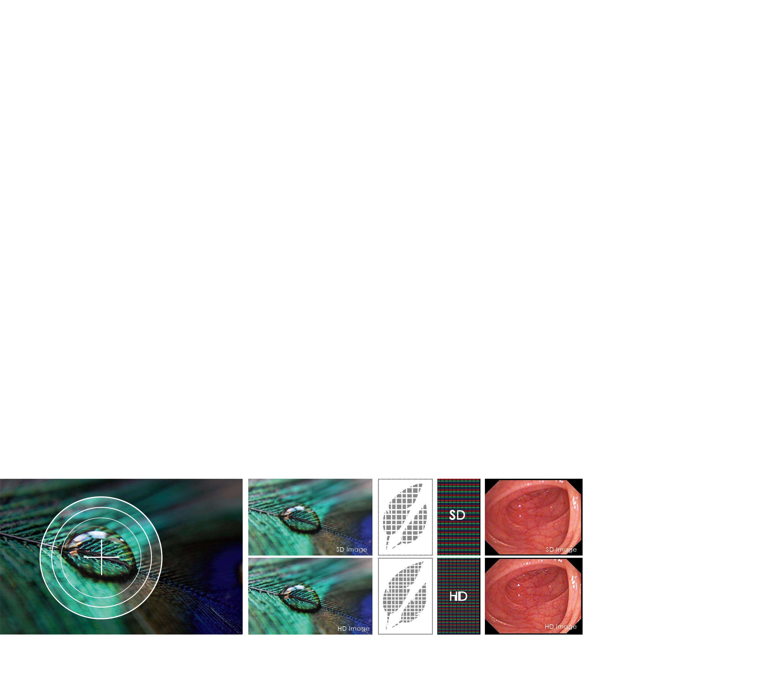 SD vs HD