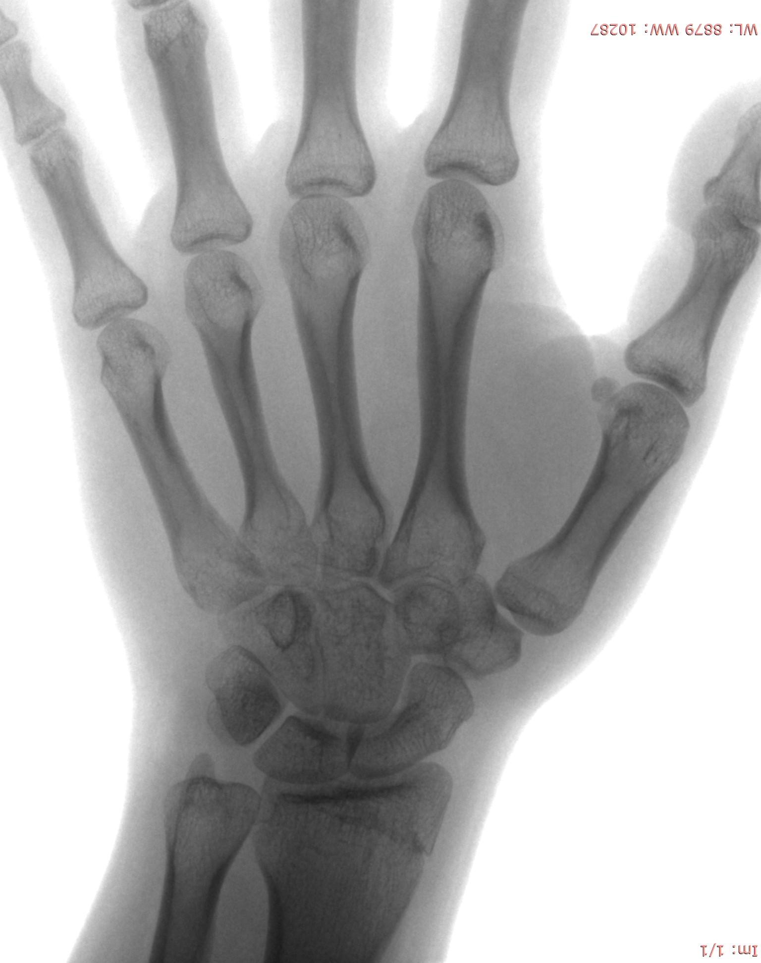 Girl (15 yr.) Hand