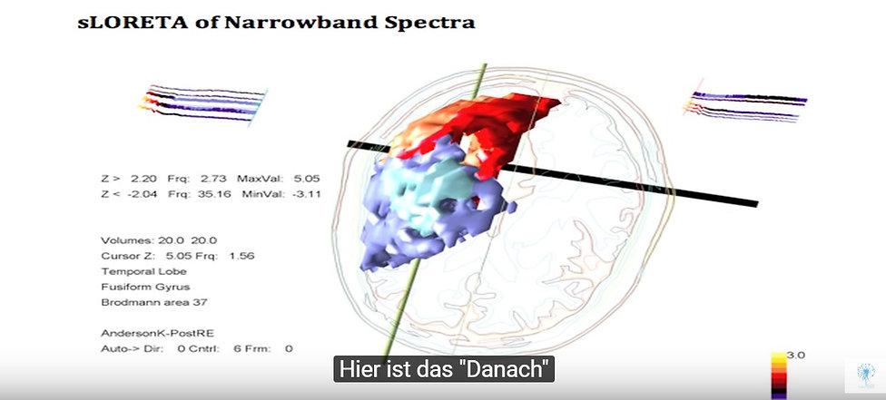 sloreta narrowband spectra 1_edited.jpg