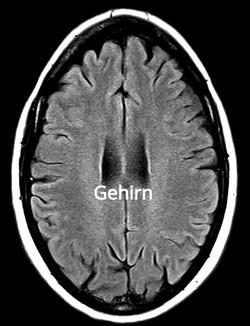 Gehirn%2520MRT%25201_edited_edited