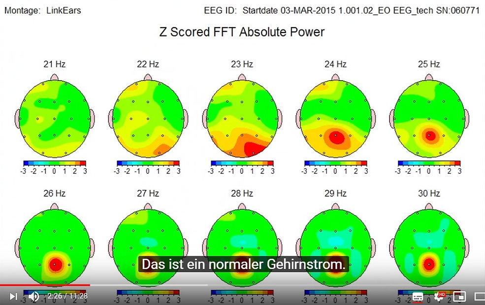EEG Bars 1_edited.jpg